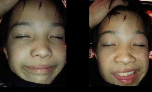 額が傷ついた上村遼太の画像