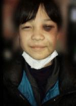 顔面アザだらけの上村遼太の画像