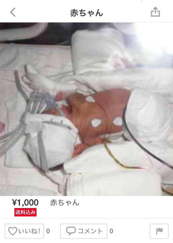 メルカリに出品された病気の赤ちゃんの画像