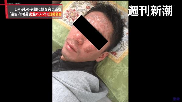 沸騰した鍋に顔を押さえ付けられるパワハラを受けた男性のやけどしている画像